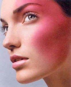 acne-rosacea_N1